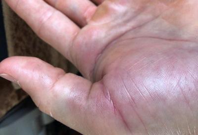 Aggiornamento Cairoli: il danno è nell'articolazione del pollice